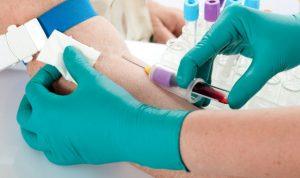 Как влияет беременность когда у женщины гепатит с