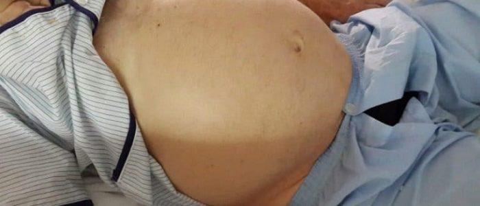 Цирроз и асцит сколько с этим живут