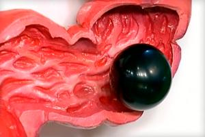 Какого цвета кал при циррозе печени thumbnail