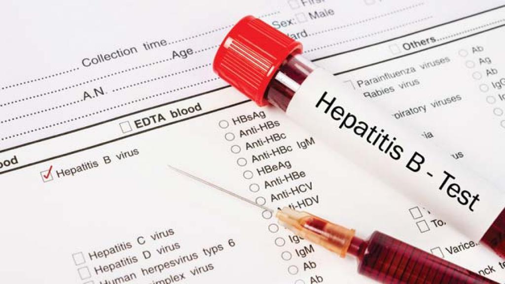 гепатит 2 стадия