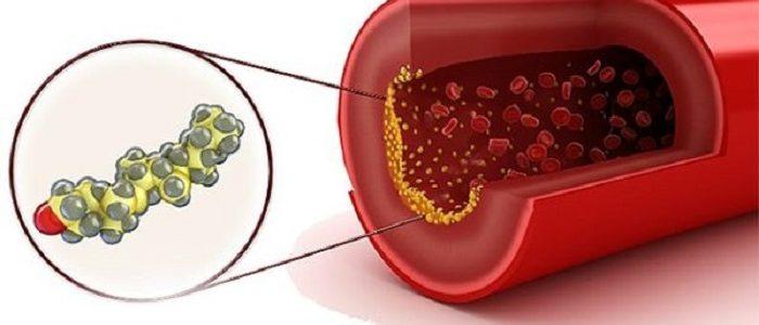 Понижен холестерин в крови причины