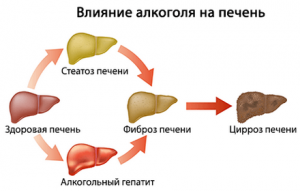 Цирроз печени и астма
