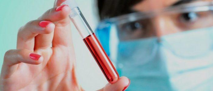 Биохимический анализ крови состояния печени