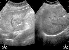 Диффузно неоднородная структура печени и поджелудочной железы thumbnail