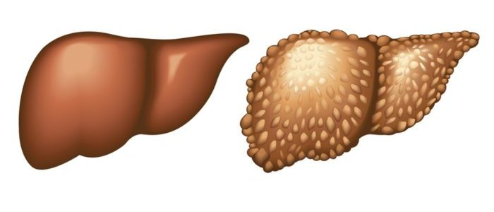 Эхинококк печени симптомы и лечение