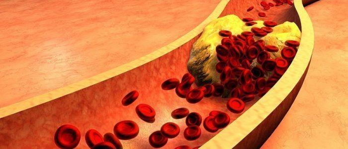 Холестерин польза и вред для организма