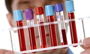 Изменения общего анализа крови при гепатите с