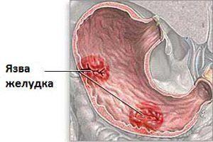 Пищевая сода лечит гепатит