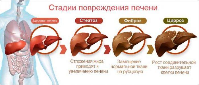 Узи печени показало диффузные изменения