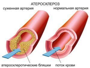 Анализ крови на биохимию триглицериды повышены