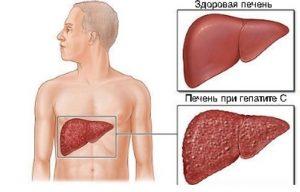 Гепатит в с подтверждающим тестом