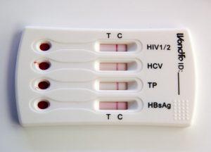 Экспресс анализ гепатит с