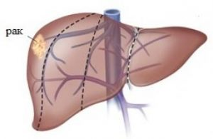 Можно ли по узи определить рак печени