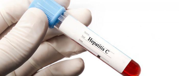 Вирусная нагрузка гепатита с анализ