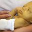 Симптомы и лечение ядерной желтухи