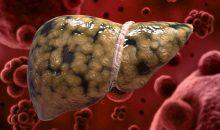 Причины и лечение гепатоза печени